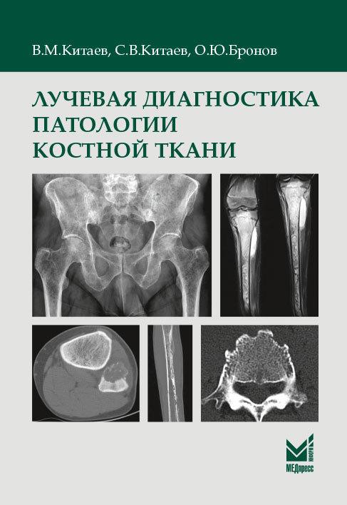 Новинки Лучевая диагностика патологии костной ткани ldpkt.jpg