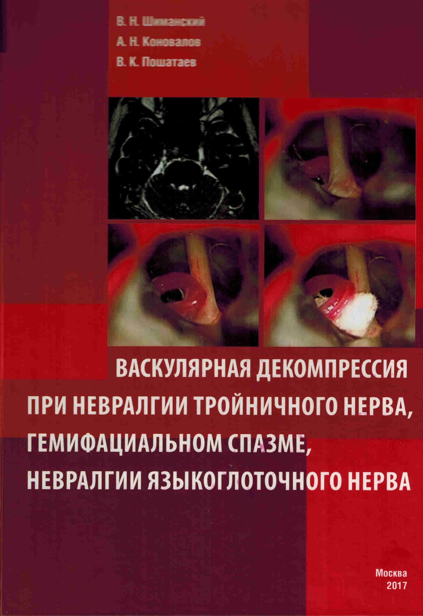 Лучшие книги по нейрохирургии Васкулярная декомпрессия при невралгии тройничного нерва, гемифациальном спазме, невралгии языкоглоточного нерва vask_dekompr_pri_nevr_tr_nerva__gem_sp__nevr_yaz_nerva.jpg