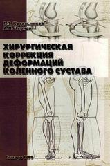 Хирургическая коррекция деформаций коленного сустава