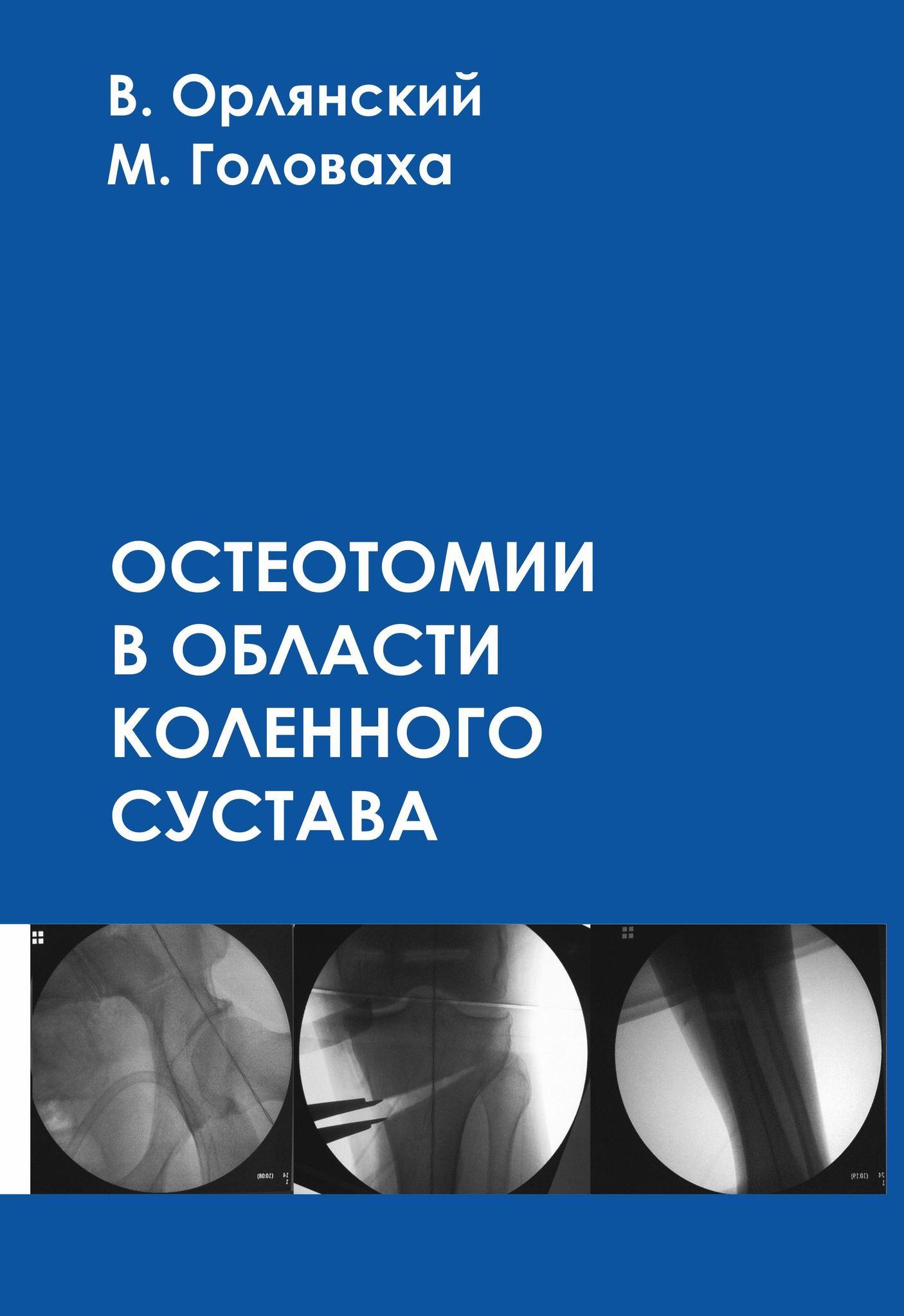 Конечности Остеотомии в области коленного сустава Обложка1.jpg