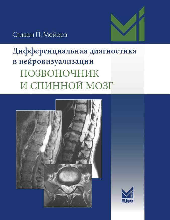 Каталог Дифференциальная диагностика в нейровизуализации: позвоночник и спинной мозг meyerz.jpg