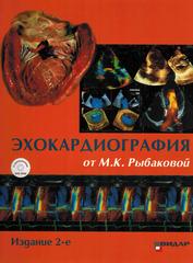 Эхокардиография от М.К. Рыбаковой