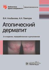 Атопический дерматит (Альбанова)