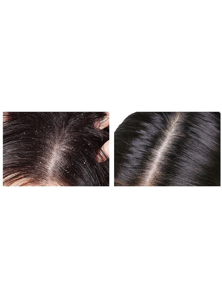 Шампунь против выпадения волос и перхоти с экстрактом меда LIFE HONEY LUMINOUS SCALP V SHAMPOO, 500 мл.