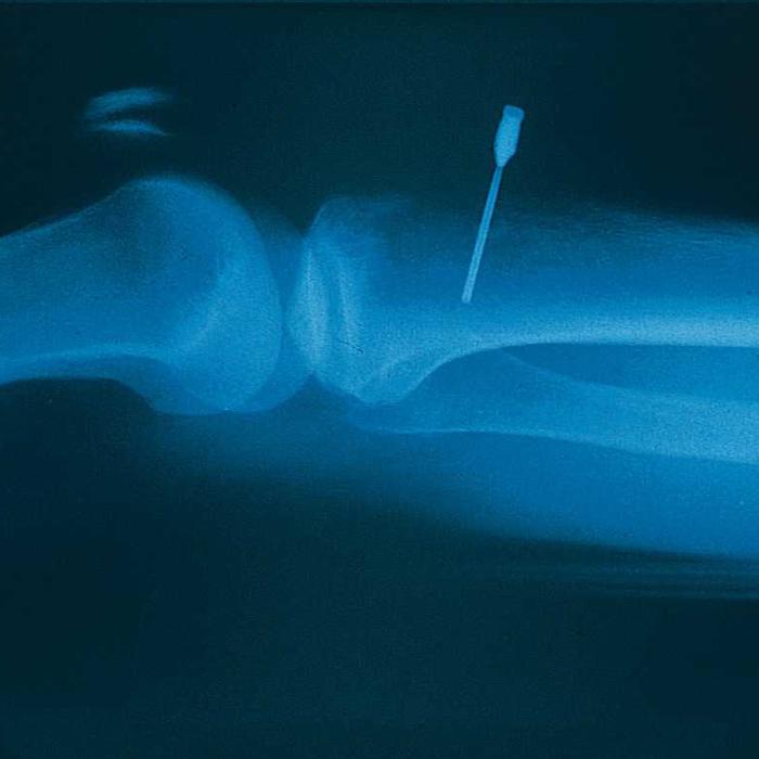 Шприц-пистолет B.I.G. для внутрикостных инъекций (Bone Injection Gun)