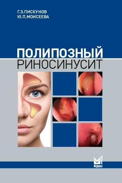 Новинки Полипозный риносинусит prt.jpg