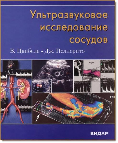 Книги по ультразвуковому исследованию Ультразвуковое исследование сосудов (Цвибель) cvibel2_.jpeg