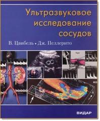 Ультразвуковое исследование сосудов (Цвибель)