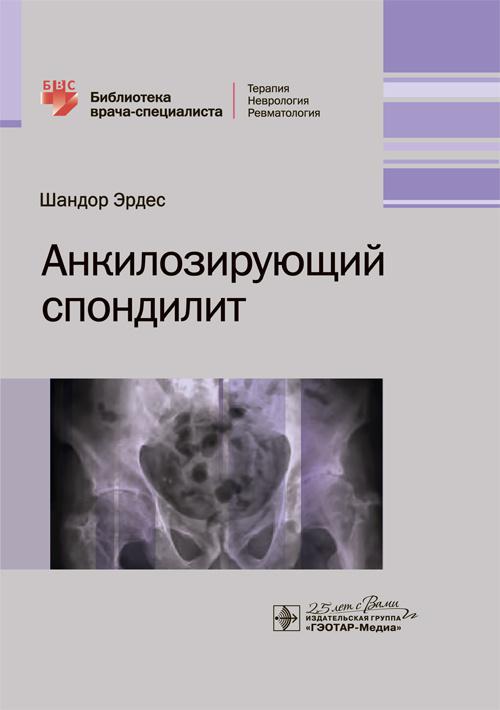 Книги по хирургии позвоночника Анкилозирующий спондилит. Библиотека врача-специалиста ankilo.jpg
