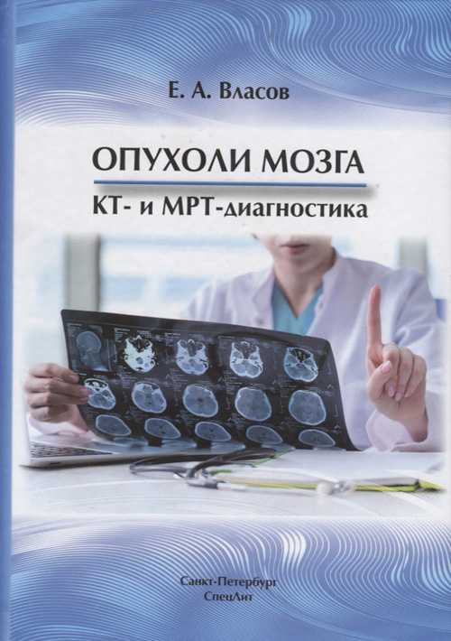 Книги по ультразвуковому исследованию Опухоли мозга КТ- и МРТ- диагностика om1.jpg