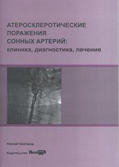 Атеросклеротические поражения сонных артерий: клиника, диагностика, лечение