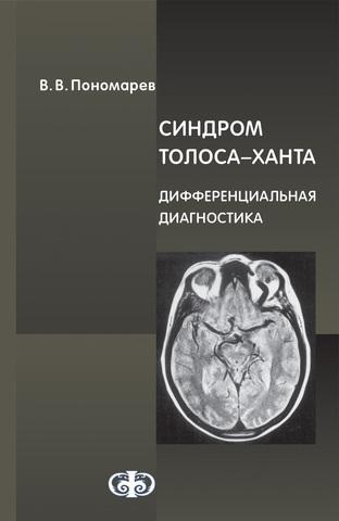 Книги студентам медикам Синдром Толоса-Ханта. Дифференциальная диагностика (случаи из практики) tolosa.jpg