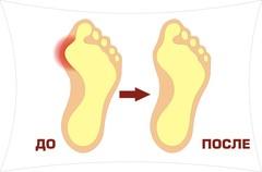 Двойной Фиксатор для коррекции большого пальца ноги