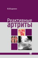 Реактивные артриты. Урогенитальные и постэнтероколитические