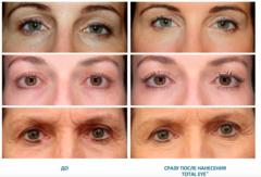 Colorescience Крем для области вокруг глаз SPF 35 Total Eye™ 3-в-1