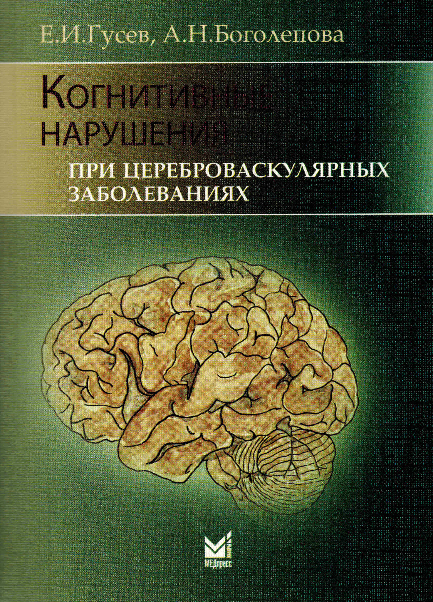 Нейро Когнитивные нарушения при цереброваскулярных заболеваниях kogn_nar_pri_cerebr_zab_0001.jpg