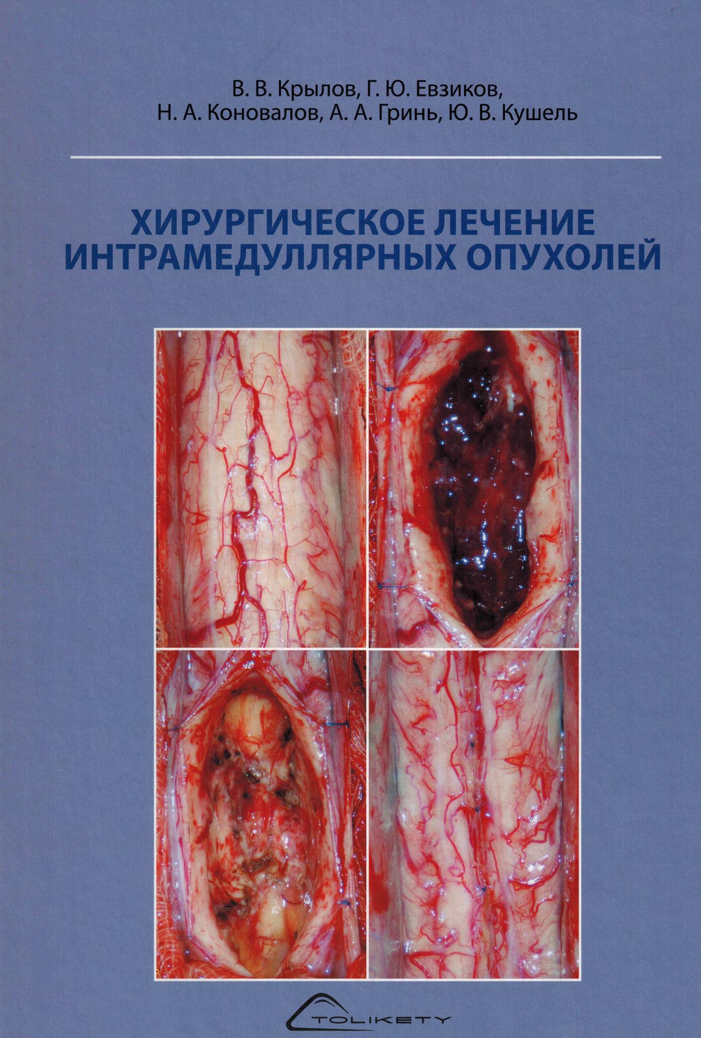 Новинки Хирургическое лечение интрамедуллярных опухолей hir_lech_intra_opuh.jpg